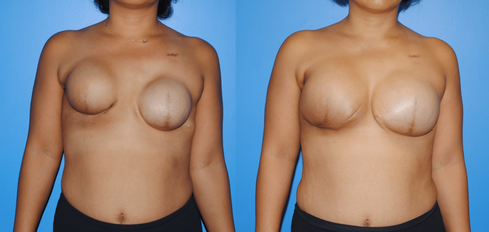Tissue Expander and Implant Breast Reconstruction