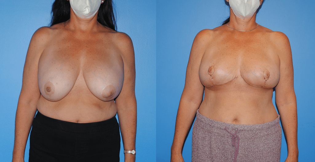 Onccoplastic Reconstruction of Lumpectomy Defects and Removal of Mammary Prosthesis