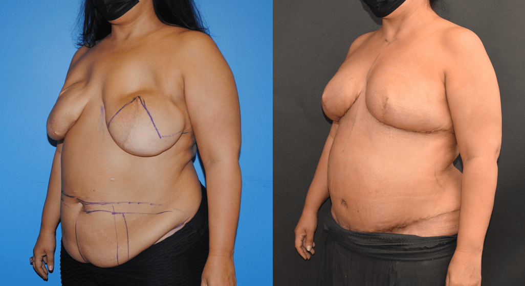 Bilateral DIEP Flap Breast Reconstruction and Removal of Mammary Prosthesis