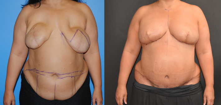 DIEP flap Breast Reconstruction after Implant Removal