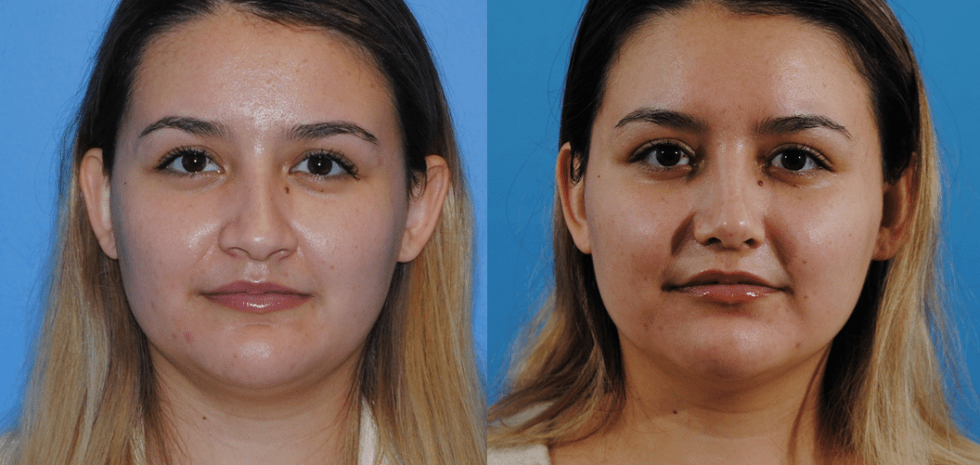 To show tip definition in Brian Dickinson, M.D. rhinoplasty surgery