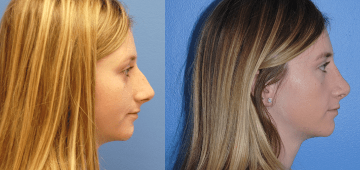 Dorsal Hump Reduction in Rhinoplasty with Natural Results