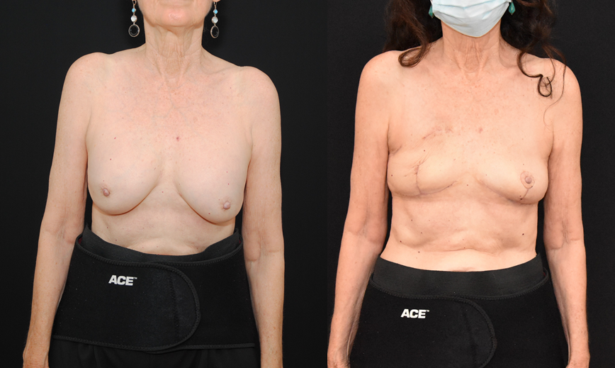 Central Lumpectomy Oncoplastic Reconstruction of Lumpectomy Defect & Implant Removal