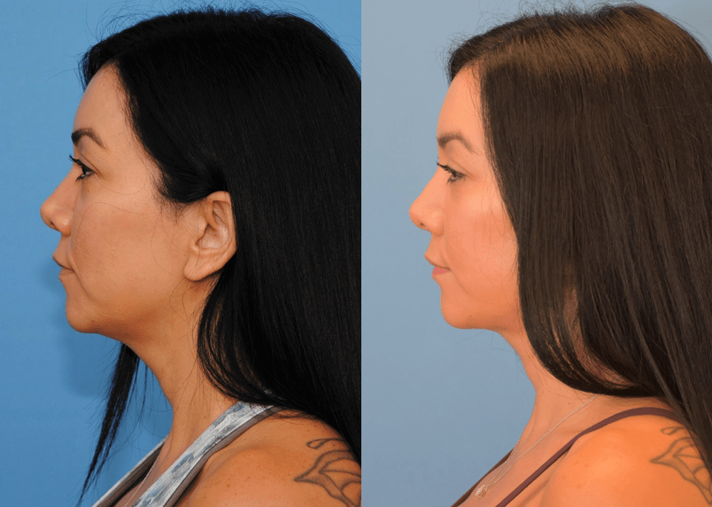 Necklift and Facelift